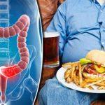 غذاهایی که امکان سرطان روده بزرگ را افزایش می دهند