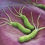 از علائم تا پیشگیری عفونت میکروبی معده