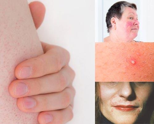 ۷ بیماری پوستی همانند جوش