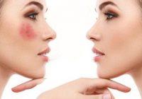 ۵ روش محو لکهای پوستی