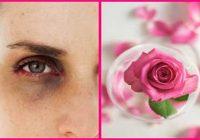 خواص گلاب برای چشم