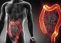 چطور سرطان روده بزرگ را از خود دور کنیم؟